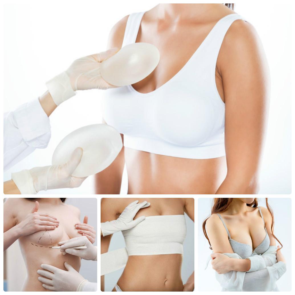Phẫu thuật nâng ngực là cách làm nhanh, hiệu quả nhất
