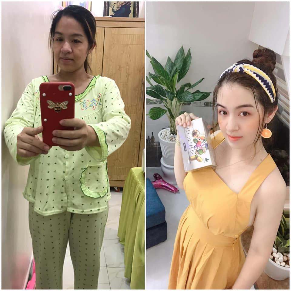 Hình ảnh của khách hàng trước và sau khi sử dụng sản phẩm